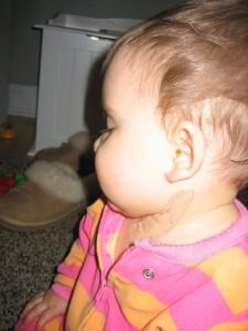 התמונה מתוך הבלוג - my torticollis baby